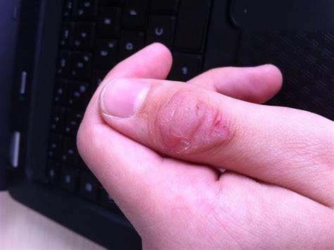 geschwuer  daumen wegen kratzen gesundheit hand