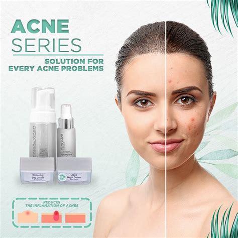 Acne Salep Ms Glow paket ms glow acne series untuk kulit berjerawat ms