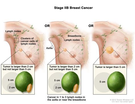 Breast Cancer Treatment Pdqhealth Professional Version