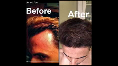 Grow Hair on Receding Hairline Naturally! (dermaroller and