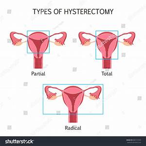 Types Hysterectomy Surgical Removal Uterus Vector Stock