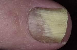 Грибок на голени ног