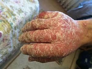 Лечение псориаза в москве клиники отзывы цены