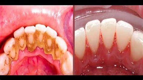 tak perlu  dokter gigi berikut   alami hilangkan