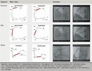 Optimal Angiographic Views For Invasive Coronary