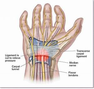 relief from carpal tunnel pain at night