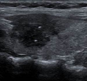 Radiology Picture of the Day » Archives » Papillary ...