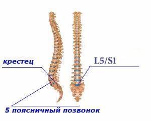 Болит крестец и тазобедренные суставы