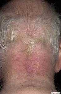 Лечение псориаза волосистой части головы в самаре