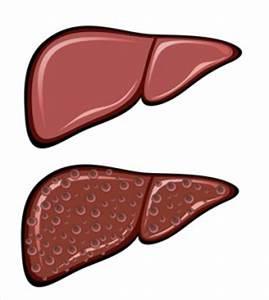 Symptomen bij leverkanker