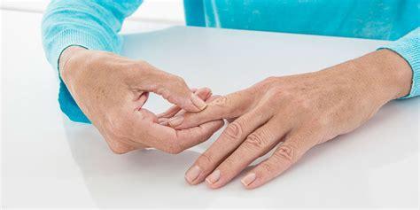 arthrose apotheken umschau