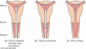 How To Check If Iud Is In Place  Alqurumresort Com