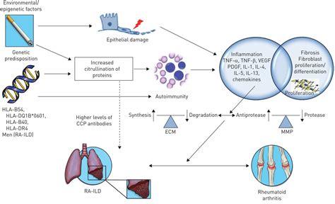 rheumatoid arthritis  lung disease european