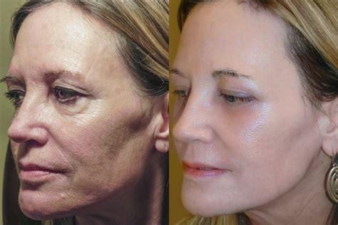 cosmetic surgeon tells 3 ways to sun damage to skin ny daily news