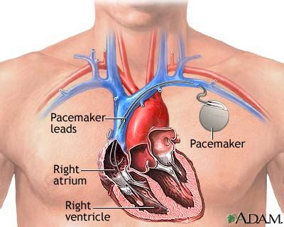 induction cooktops  pacemakers