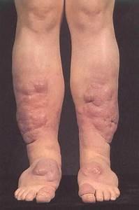 Skin Signs Of Systemic Disease