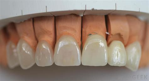 what is veneer what is the difference between a dental veneer and a dental crown
