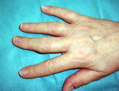 patienten info zum kuenstlichen fingergelenk