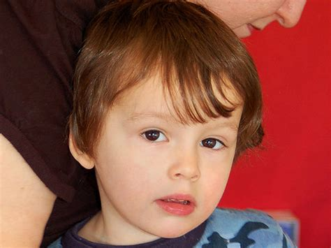 autism facial features  show disorder photo
