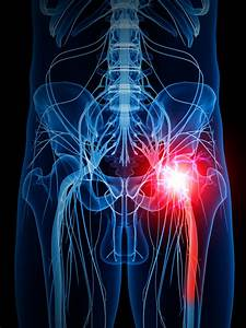 A Complete Overview Of Sciatica Nerve Pain