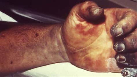 plague     dead  americans  risk