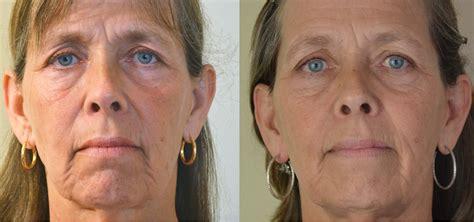 Myotone   Microcurrent Facial Lifting, Toning, Wrinkle