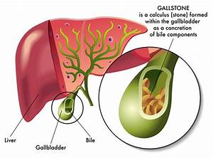 The Gallbladder Diet  How Your Food Choice Can Lower The Risk Of Gallstones