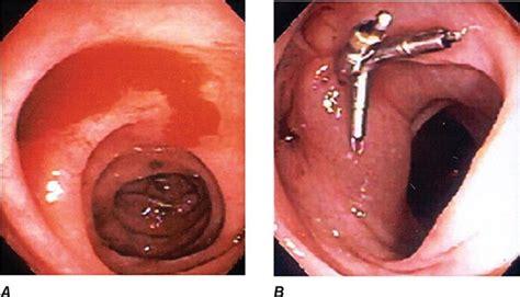 approach   patient  gastrointestinal disease