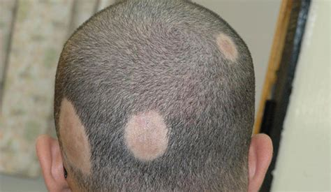 What is Alopecia? Types & Causes Explained