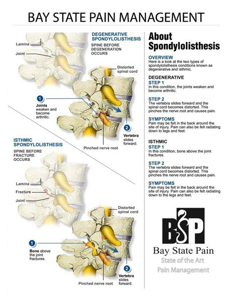 1000 images about spondylolisthesis on lumbar