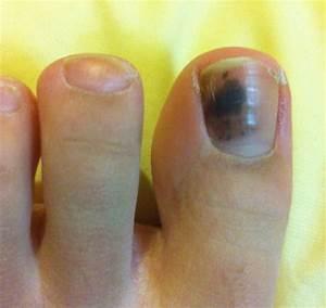 Плесневый грибок на ногте