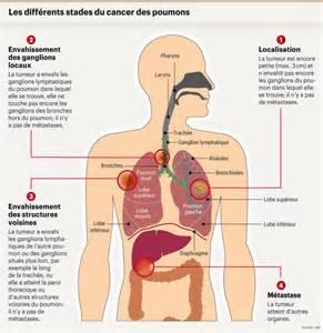 Cancer Du Poumon Stade 4 Espérance De Vie by De Tous Les Cancers Celui Du Poumon Est Le Plus Mortel