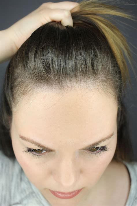 How I Grew My Hair Back Post Partum Naturally And In One
