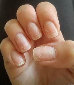 Грибок ногтей птичий коготь