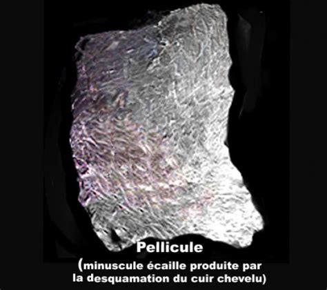 image photo pellicule du cuir chevelu dermatologie