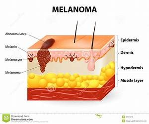 Melanoma or skin cancer stock vector. Illustration of ...