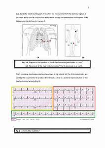A Student U0026 39 S Guide To Ecg Interpretation