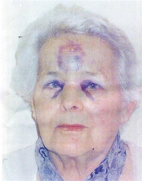 appalling injuries  pensioner