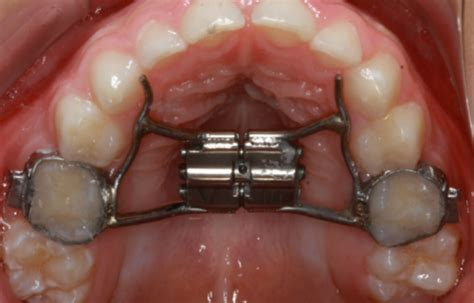 Smiles & Faces Orthodontics