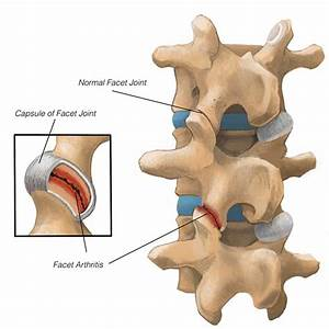 Spinal Arthritis  What It Is And Treatment Options