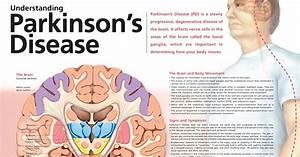 Understanding Parkinson U0026 39 S Disease Chart