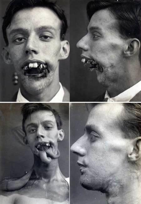 chris owen ear surgery 1169 best world war one images on pinterest world war