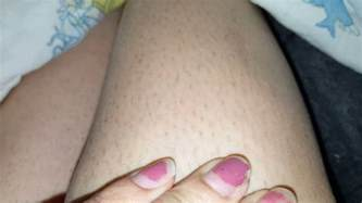 Do You Shave Before Or After You Shower - 2 weeks after epilating with strawberry legs