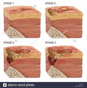 Illustration Of The 4 Stages Of A Bedsore  Bedsores Or