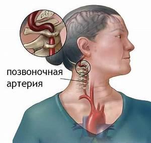Симптомы гипертонии при шейном остеохондрозе