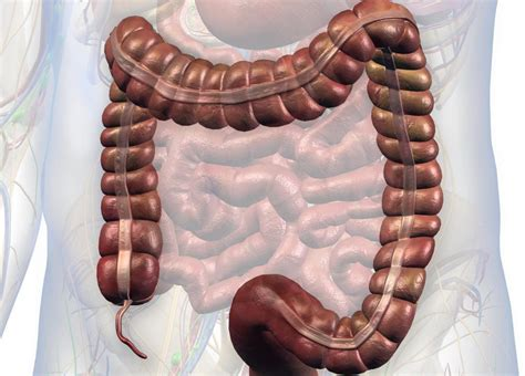 It is attached to the large intestines. Chronic appendicitis: Symptoms, treatment, and outlook