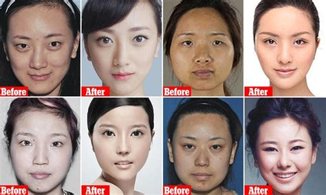 Asian Family Plastic Surgery Meme - how chinese women are flying to south korea for a more western face daily mail online