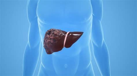 Fettleber ultraschall