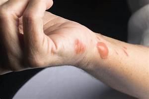 How, Burn, Scars, Are, Treated