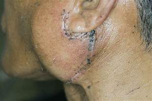 Leukoplakia  Causes  Symptoms  Types  Treatment  And Prevention